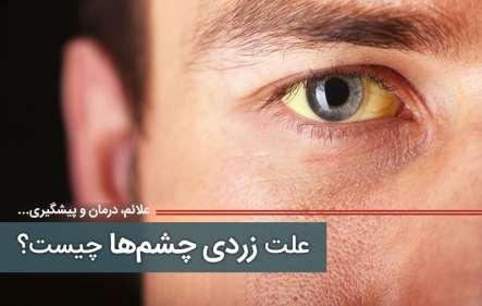 علت زردی چشم - بیماری های مرتبط با زردی چشم