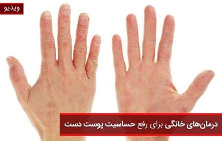 درمان های خانگی حساسیت پوست دست - ویدیو