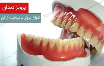 پروتز دندان، انواع آن و نحوه نگهداری از آن