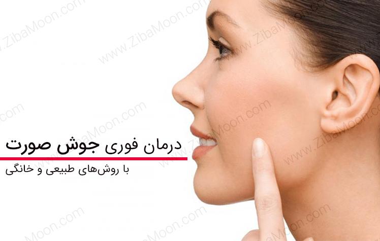 از بین بردن جوش صورت فوری با مواد طبیعی و خانگی