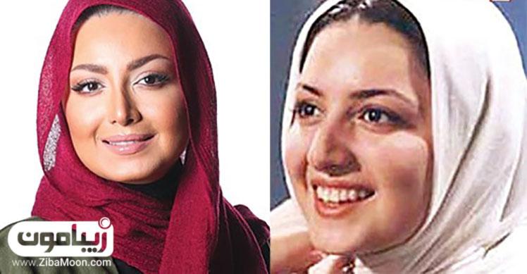 عکس قبل و بعد عمل شیلا خداداد