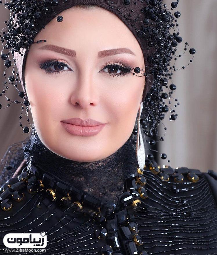 طلاق نیوشا ضیغمی از همسرش تصاویر نیوشا ضیغمی قبل عمل زیبایی و بعد از آن - زیبامون