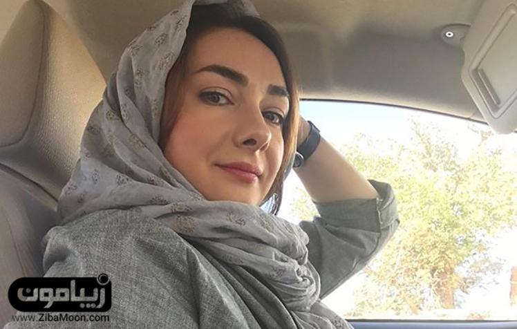 هانیه توسلی بعد از جراحی زیبایی