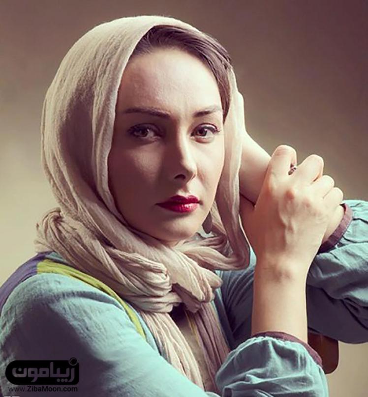 هانیه توسلی بعد از عمل زیبایی