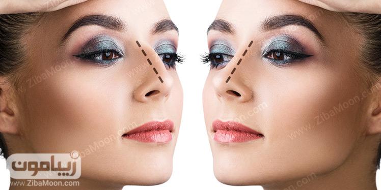 جراحی بینی قبل و بعد