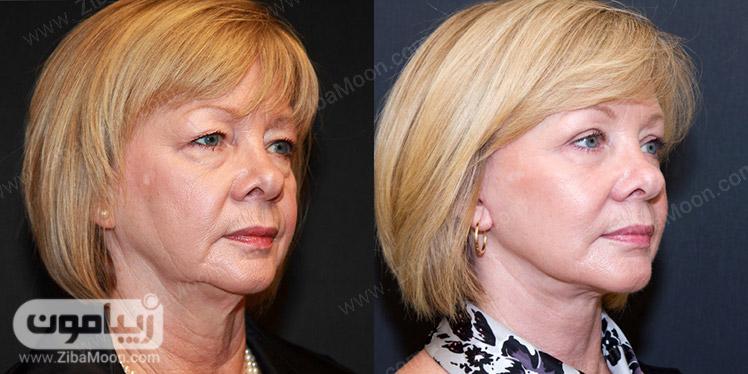 قبل و بعد از تزریق چربی صورت