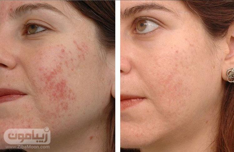 لیزر صورت قبل و بعد