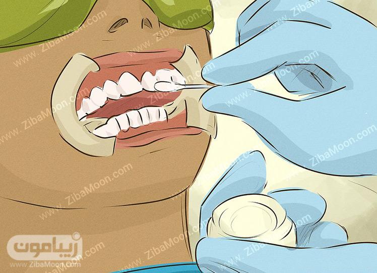 سفیدی دندان با بیلیچینگ