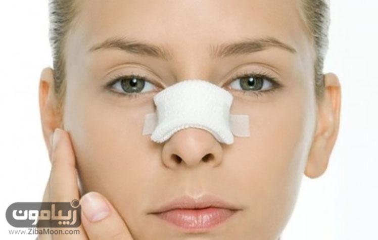 بعد از عمل بینی