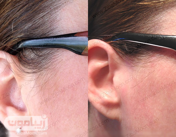 قبل و بعد از دکلره کردن مو
