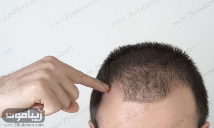 ویتامین مربوط به مو