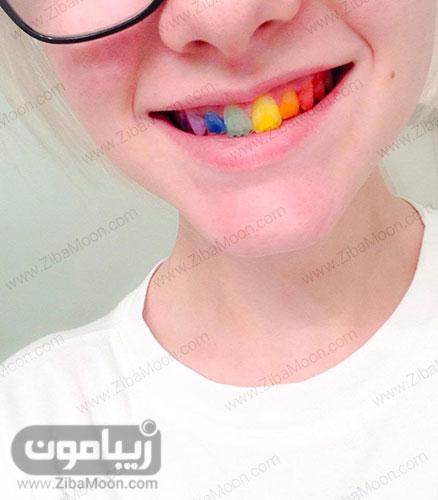 دندان رنگی کودکانه