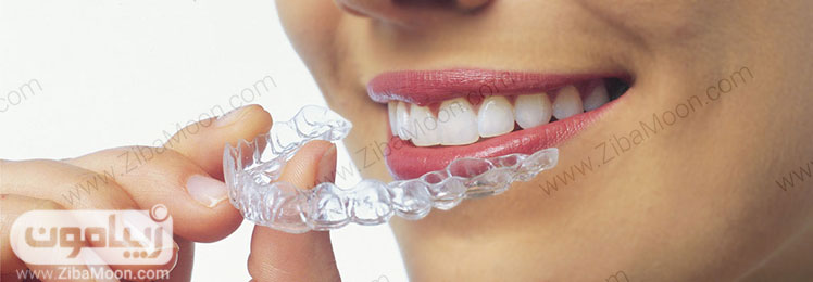 ارتودنسی نامرئی دندان