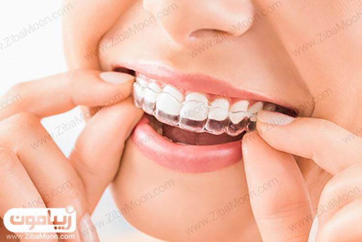 دندان مرتب و زیبا