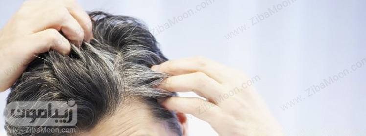سفید شدن موها