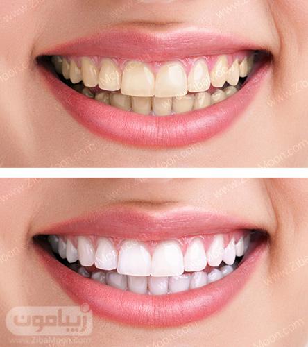 علت تغییر رنگ دندان