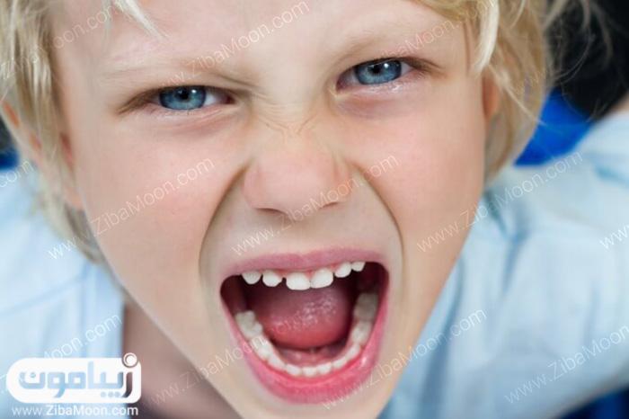 ساییدن دندان ها