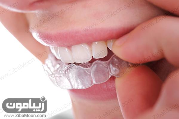 بلیچینگ دندان در خانه
