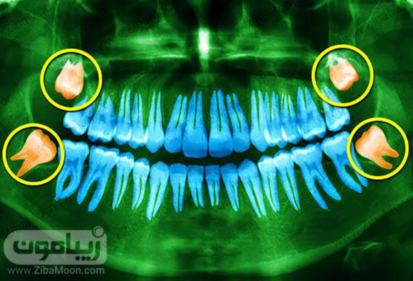 , همه چیز درباره دندان عقل + دانستنی های مفید