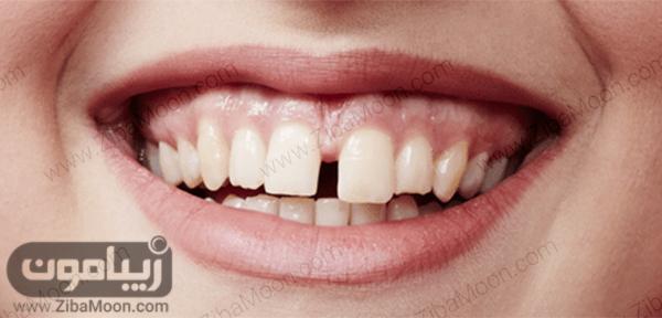دندان های با فاصله