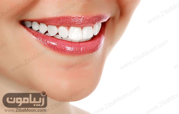 دندان های یکدست