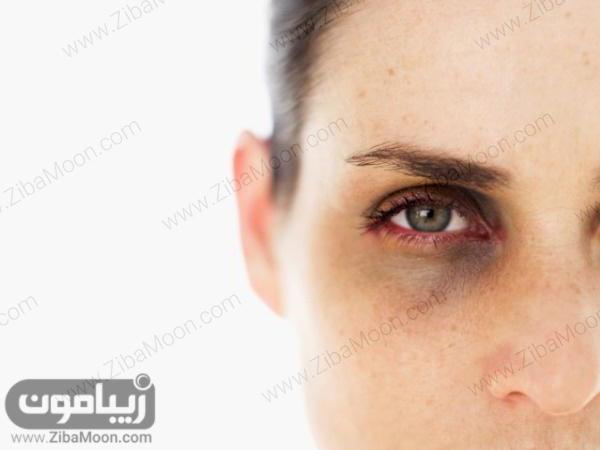 تیرگی زیر چشم