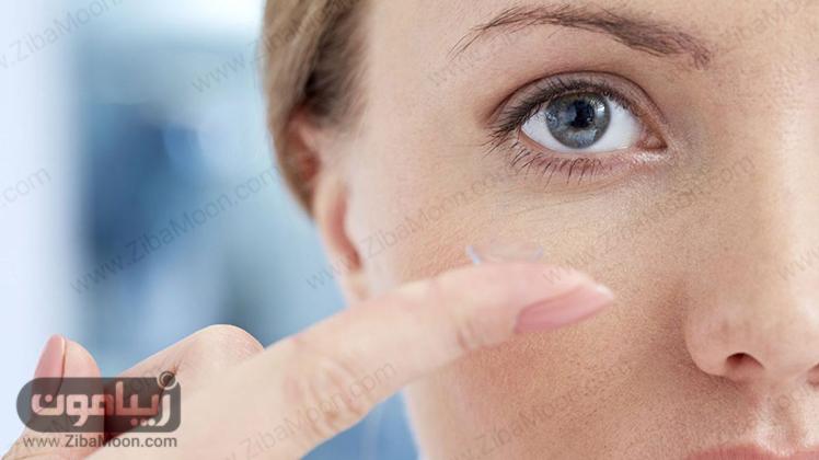 قرار دادن لنز طبی در چشم