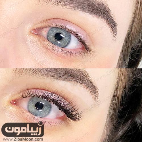 قبل و بعد از کاشت مژه