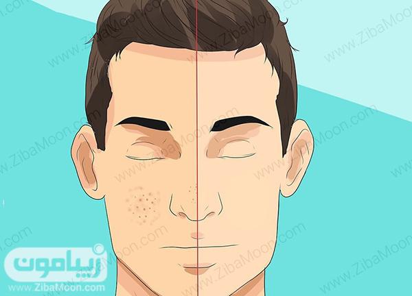 لایه بردای از پوست