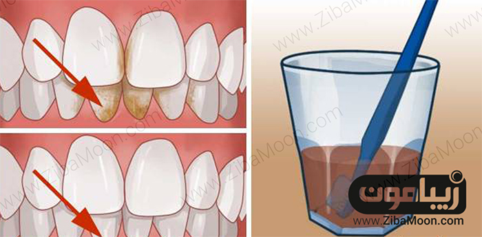 سرکه و سفیدی دندان