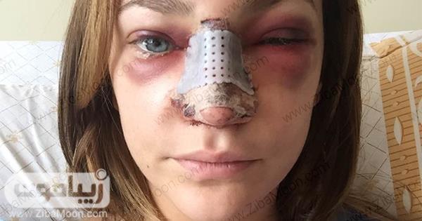 عوارض بعد از عمل بینی
