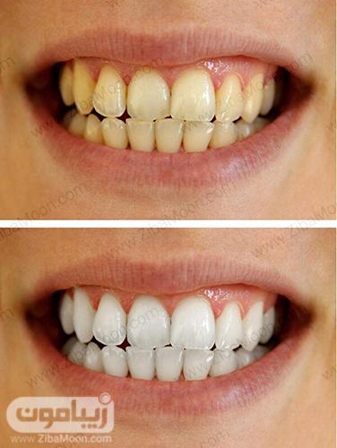 قبل و بعد از سفید کردن دندان