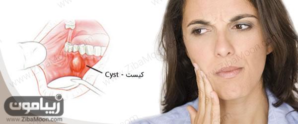 کیست دندانی