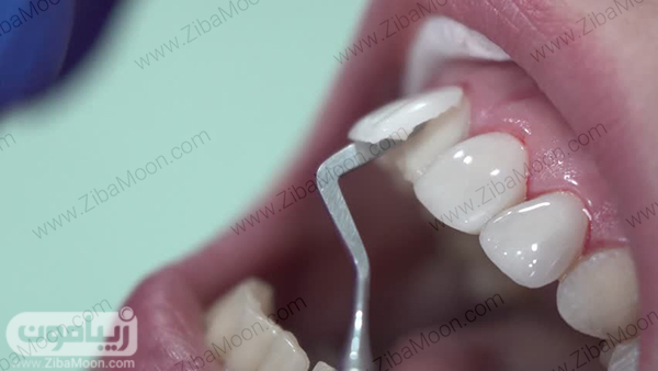 لمینت کردن دندان