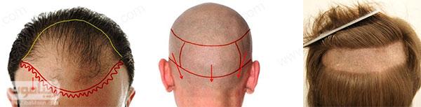 علامت گذاری قسمتهای اهدا کننده و دریافت کننده مو