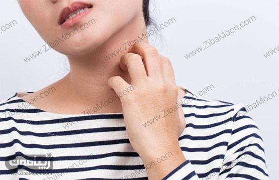 , راه های درمان خانگی و مقابله با اگزمای پوستی