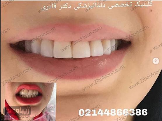 مطب دندان پزشکی دکتر محمد هادی قادری