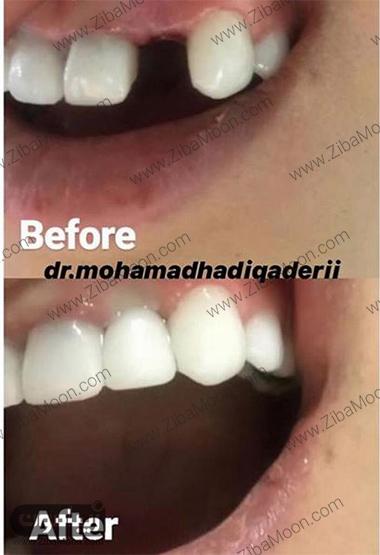 , اشنایی با مطب دندان پزشکی دکتر محمد هادی قادری