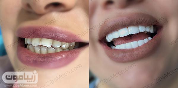 قبل و بعد از کامپوزیت دندان