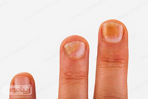 عکس قارچ ناخن دست