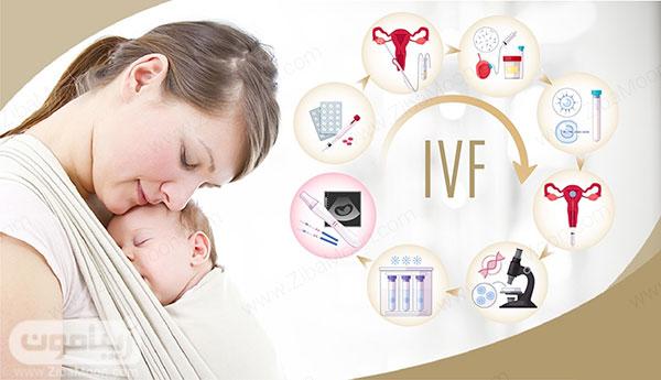 ای وی اف و تولد نوزاد