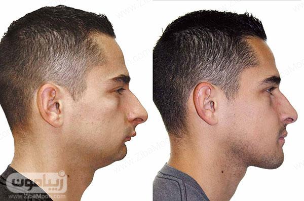 عمل زاویه سازی صورت