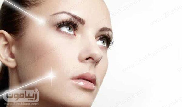 سفید شدن پوست با لیزر