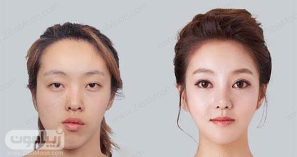 قبل و بعد از زایوه سازی صورت