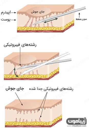 روش درمانی سابسیژن