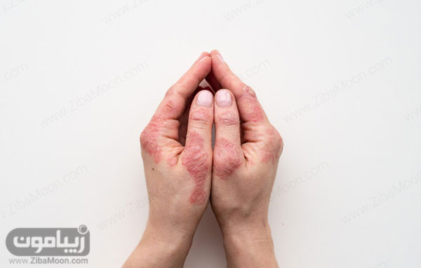 اگزما دست