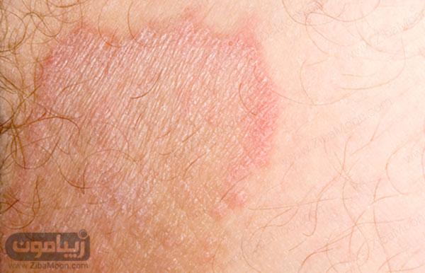 قارچ پوستی کشاله ران