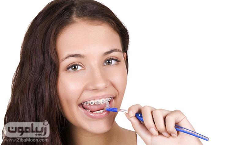 مراقبت و تمیز کردن دندان حین ارتودنسی