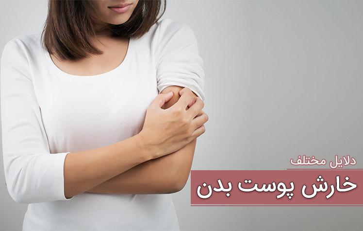 علت خارش پوست بدن