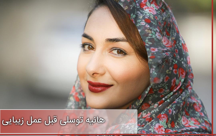 تصاویر هانیه توسلی قبل عمل زیبایی و بعد از ان